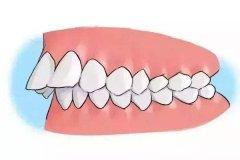 骨性齙牙和牙性齙牙有什麼區別呢?怎樣預防齙牙呢?