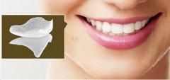 深圳牙貼面科普-網上十幾塊的浮雕美白貼面可信嗎?