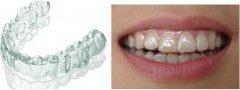 深圳箍牙科普-隱形牙套同鋼牙箍牙效果一樣嗎?