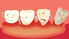 深圳牙周治療-哪些不良習慣可能會引發牙周炎呢?