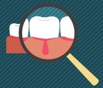 深圳牙周治療-牙齦炎有哪些表現呢?