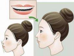 深圳牙齒矯正科普-錯頜畸形有哪些危害?