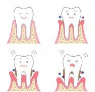老了就一定會牙齦萎縮嗎?