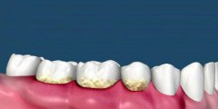 什麼導致牙床腫痛呢?
