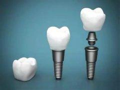種植牙齒分為哪幾類
