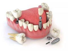 種植牙失敗的原因有哪些