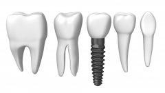 深圳種牙—種植牙術後有哪些注意事項