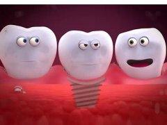 種植牙可能出現哪些問題