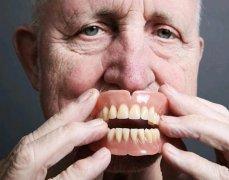活動義齒的使用有哪些注意事項