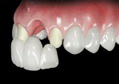 拔牙後能立刻鑲牙嗎