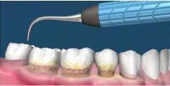 青春期牙齦出血是上火嗎?