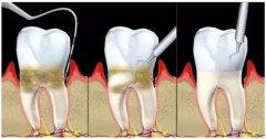 深圳牙周治療科普-侵襲性牙周炎有哪些表現?