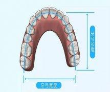 牙列擁擠的錯頜畸形都需要拔牙矯治嗎?