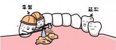 患有牙周病的牙列稀疏可以做矯正嗎?