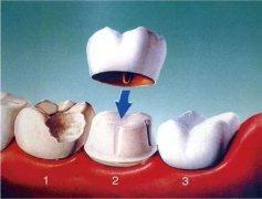 何謂牙體缺損