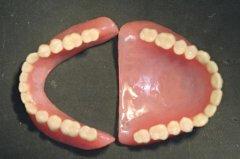 全口假牙靠什麼支持