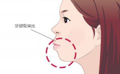 如何區別牙性齙牙和骨性齙牙?