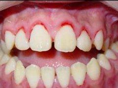 牙周炎為什麼常常導致口臭?