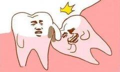 阻生牙是怎麼拔除的呢?