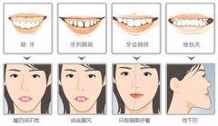深圳箍牙科普-牙頜畸形的不良影響