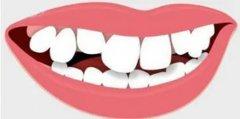 牙頜畸形的表現有哪些呢?
