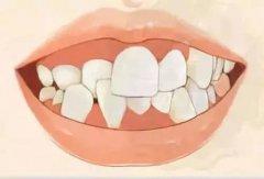 造成牙頜畸形的遺傳和先天性因素有什麼呢?
