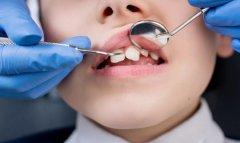 什麼是牙頷畸形,我國少年兒童牙頜畸形發病率 是多少?