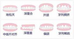 牙頜畸形能矯正嗎?