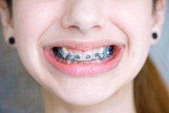 牙頷畸形矯正前應作哪些檢査和治療?