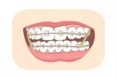 牙頷畸形矯正過程中應注意哪些問題?