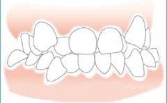 為什麼矯正牙齒有時要拔掉好牙?哪些情況需要拔牙?