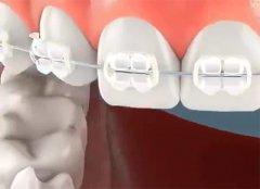 換牙期矯治的適應證及特點是什麼?