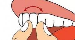 兒童恒牙外傷挫入牙槽窩中如何處理?