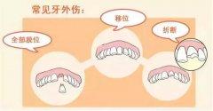 兒童恒牙外傷折斷如何處理?