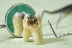哪些原因會引起牙痛呢?