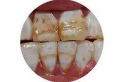 牙齒變色了怎麼辦呢?