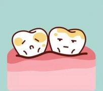 牙齒為什麼會變色呢?