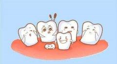 何時拔除多生牙為好?