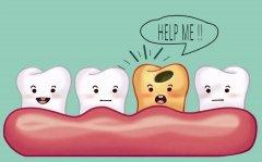 醫生補牙用的是什麼材料?