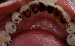 怎樣去除牙面上的煙斑和茶垢呢?