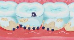 牙結石是怎樣形成的?對牙齒有何影響?怎樣防治?