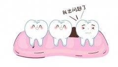 塞牙——食物嵌塞是怎麼回事?