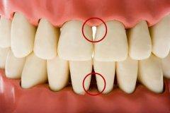 怎樣進行牙齦按摩?有哪些防治作用?