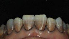 """""""四環素牙""""是怎麼回事?如何治療?"""
