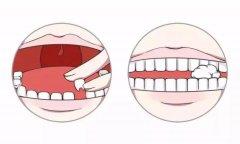 剛換的牙因外傷脫位怎麼辦?