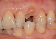 口腔內的殘根可以不拔除直接鑲牙嗎?