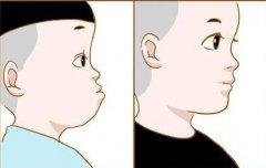 牙齒長得不齊是由什麼原因引起的?如何防治?