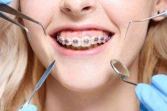 什么时候矫治错颌畸形比较合适?