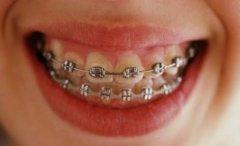 為什麼矯治錯頜畸形時要拔牙?
