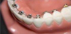 為什麼錯頜畸形矯治完成後,還需要戴保持器?